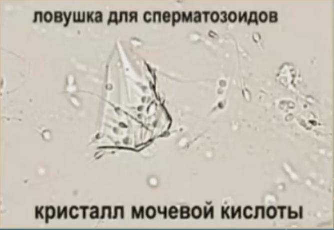 ловушка для сперматозоида